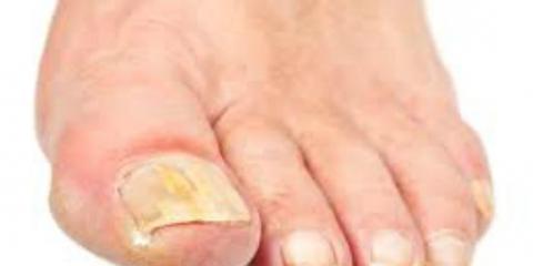 ¿Cuáles son los remedios caseros para el tratamiento de hongos en las uñas?
