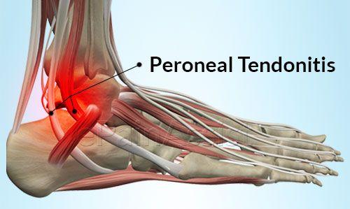 13 mejores remedios caseros para la tendinitis del pie
