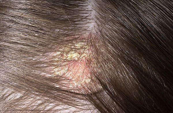 Remedios caseros ayurvédicos para cuero cabelludo escamoso