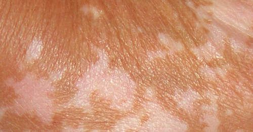 Rashes Appear Like Ring Started From Leg Spreading To Hands