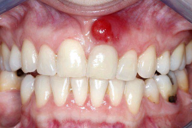 11 Remedios caseros para el absceso dental